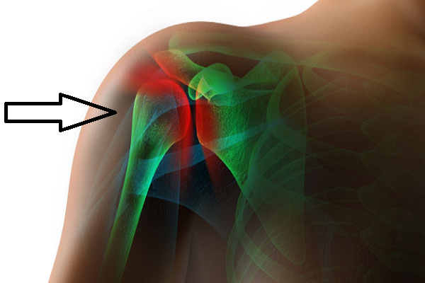 How to treat frozen shoulders in fibromyalgia